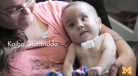 Luchtpijpje uit 3D-printer redt leven van baby [video]