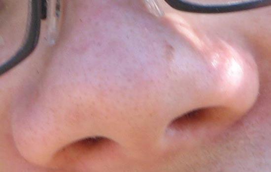 Elektronische neus spoort kanker op