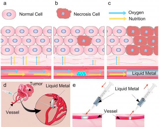 Vloeibaar metaal injecties tegen kanker