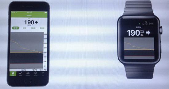 Apple-Watch-suikerziekte