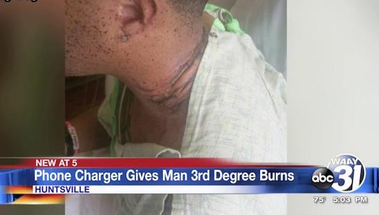 Man loopt zware brandwonden op na ongeluk met iPhone